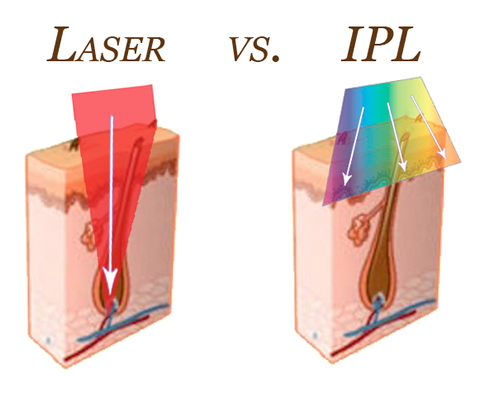 Diode Laser Permanent Hair Reduction Exhale Body