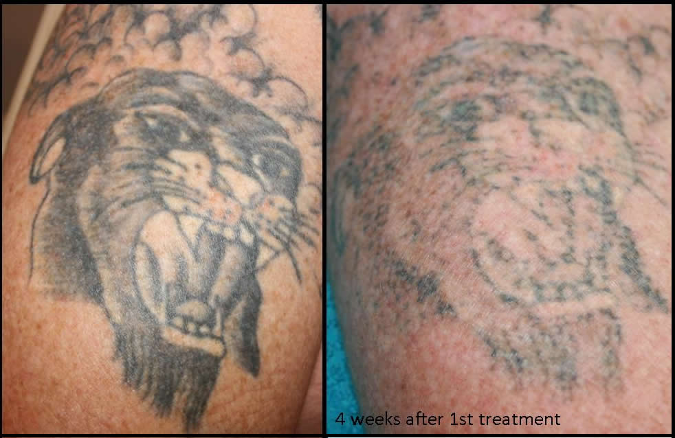 ... _Body_Rejuvenation_laser_tattoo_removal_tattoo_removal_tattoo2.jpg