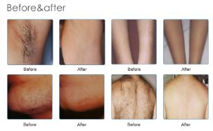 Diode Laser - Permanent Hair Reduction - Exhale Body
