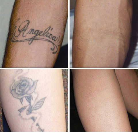 Tattoo Removal Exhale Body Rejuvenation
